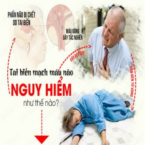 Điều trị di chứng sau tai biến mạch máu não